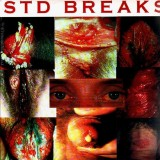 D-Styles - STD Breaks - LP